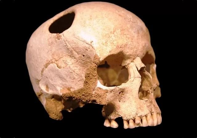 um crânio do neolítico que passou por uma trepanação (Foto:  Natural History Museum, Lausanne/Rama)