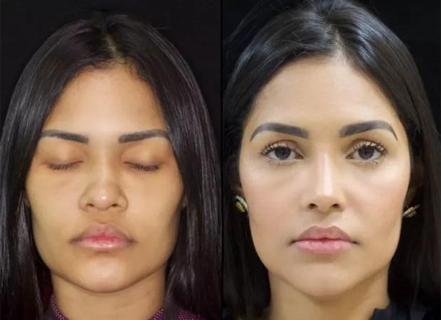 Flay mostra antes e depois do nariz (Foto: Reprodução / Instagram)