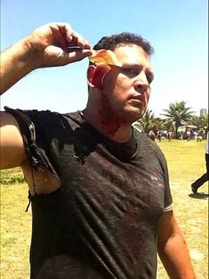 Marcelo Tigre, de 31 anos, foi atingido por três tiros de balas de borracha. Um disparo acertou a orelha, outra a perna e o terceiro as costas. 'Vim de Brasília para ajudar o povo nas manifestações', afirmou (Foto: Guilherme Brito/G1)