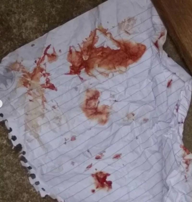 Criança tentou limpar ferimento com folha de caderno — Foto: Reprodução/Arquivo Pessoal