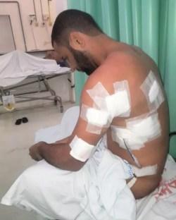 'Me chamar de viado não é ofensa. Tomar 4 tiros sim', diz homem baleado após dar beijo em outro rapaz em bar na Bahia   Bahia   G1
