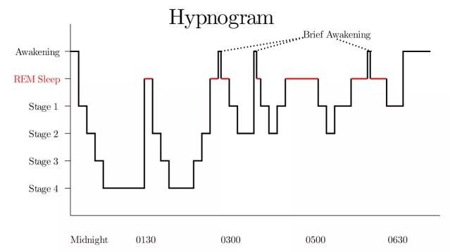 Hipnograma — gráfico que representa estágio do sono em função do tempo (Foto: Pixabay)