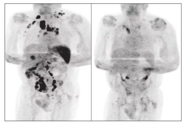 Paciente de 61 anos teve a remissão de um linfoma após desenvolver a Covid-19 — Foto: Reprodução/British Journal of Haematology
