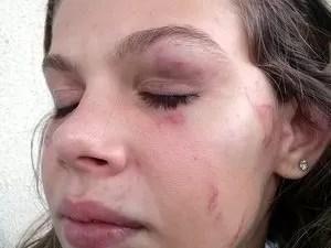 Estudante de 15 anos foi espancada dentro da sala de aula na Escola Estadual Castelo Branco, em Limeira (Foto: José Carlos Roque Junior/Acervo pessoal)