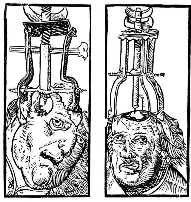 Uma gravura de 1525 mostrando a trepanação (Foto: Peter Treveris/Heironymus von Braunschweig)