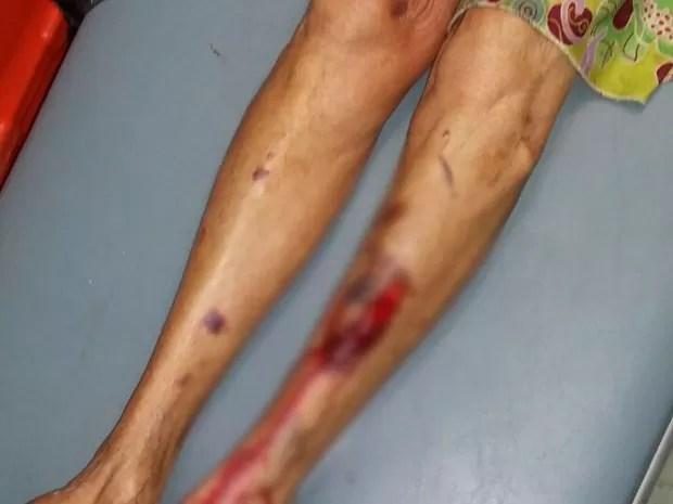 Idosa de 75 anos foi agredida pelo próprio filho na cidade Itamaraju, na Bahia (Foto: Sulbahianews)