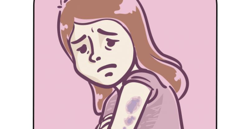 【爆趣】突然發現身上有瘀青時,如果沒有明顯的外傷,早上起來卻發現身上一塊瘀青?現在正值農歷7月鬼門大開,第一反應?測你警戒心強嗎! (0608) - Yespick - 熱新聞 YesNews
