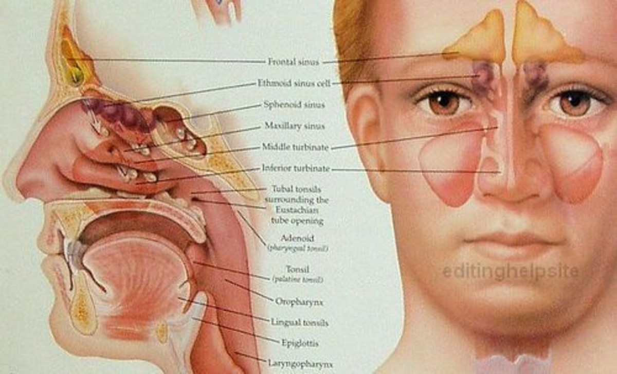 face pressure points diagram virago wiring chronic sinusitis- the first time western medicine failed me