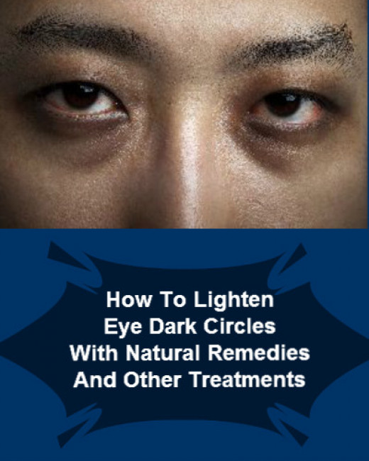 How To Clear And Lighten Dark Circles Causes And Best ...
