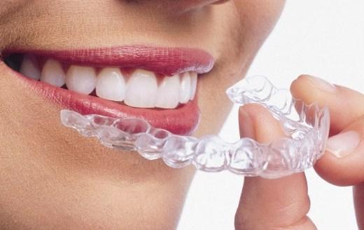 牙齒矯正維持器「就是要戴一輩子」!牙醫警告:「不然幾年後又要重新矯正....」 - LOOKER