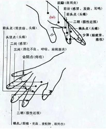 手掌穴道圖解大全。所有手掌穴位都有!手掌穴位圖按摩收藏! - 讀讀