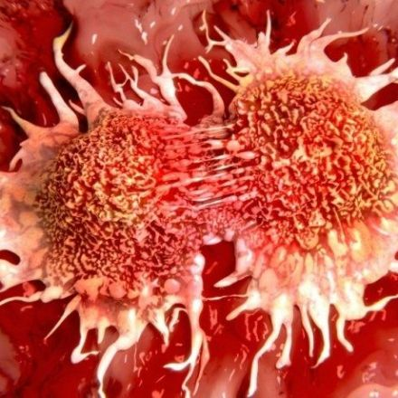 """Why we need to redefine the """"cure"""" for cancer"""