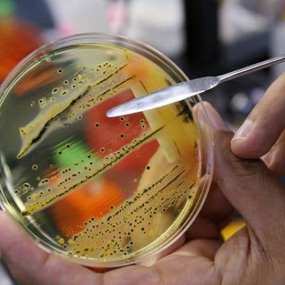 The 12 bacteria that pose the greatest threat to human health