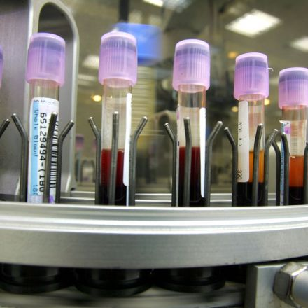 New Blood Test Could Reduce Harmful Effects Of Sports Concussions