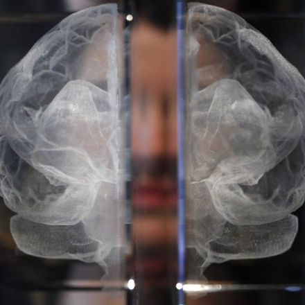 How Poverty Changes the Brain