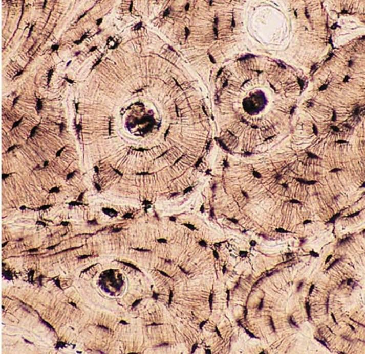 Cross section of bone tissue