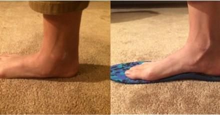 """我的 """"拇指外翻"""" – """"客製化鞋墊"""" 幫你矯正 低足弓併發拇指外翻"""