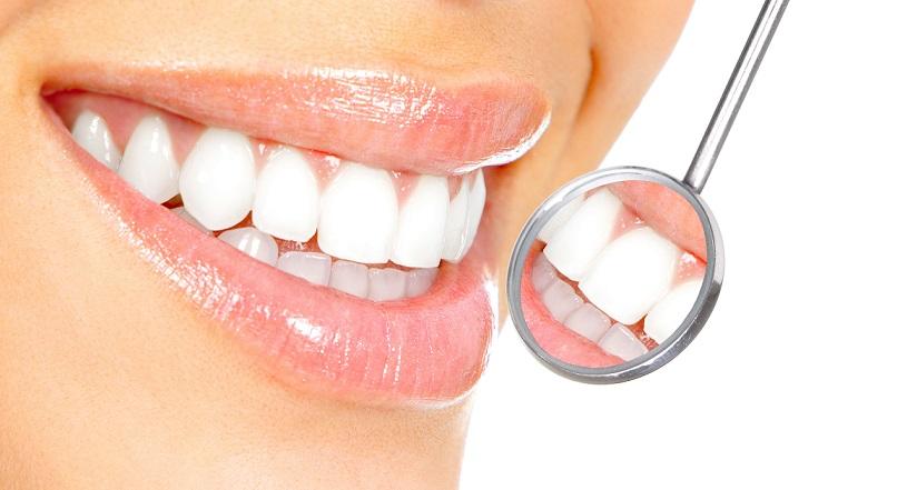 別傻了!誰說牙齒潔白一定要花錢?這4個天然秘方還你迷人笑容!(上)