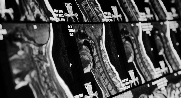 MR_1750-Head-and-neck-MRI-scan-1_bw