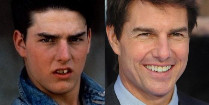ClioMakeUp-denti-celebrity-dopo-trattamenti-sbiancanti-Tom-Cruise.jpg