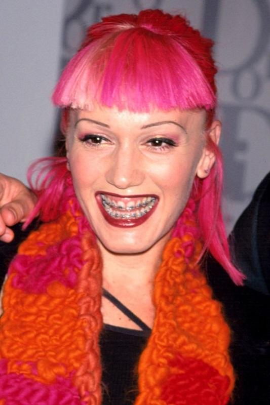 ClioMakeUp-denti-celebrity-prima-trattamenti-sbiancanti-Gwen-Stefani