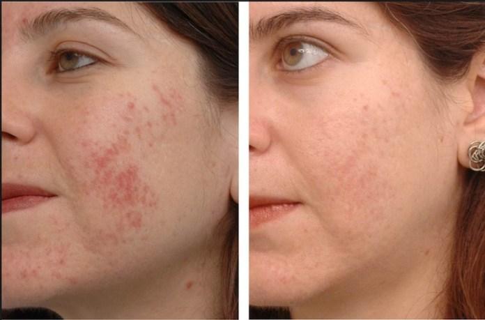 ClioMakeUp-cicatrici-curare-metodi-rimedi-acne