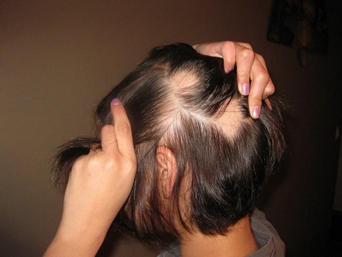 ClioMakeUp-Katie-Hale-Alopecia_16