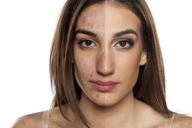 ClioMakeUp-cicatrici-segni-macchie-acne-come-curare-eliminare-1.jpg