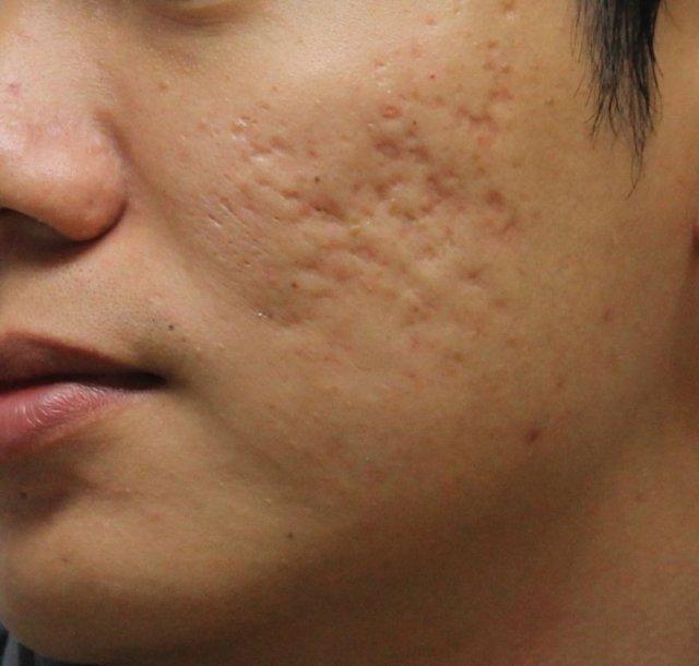 ClioMakeUp-cicatrici-segni-macchie-acne-come-curare-eliminare-50