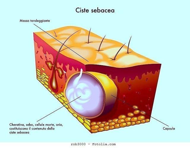 ClioMakeUp-papule-pustole-cisti-come-trattarle-prodotti-specifici-cisti
