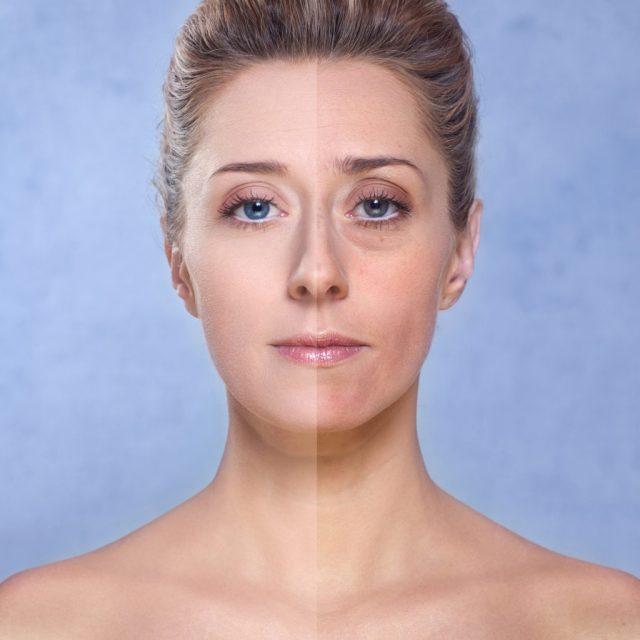 ClioMakeUp-pelle-pallida-rimedi-soluzioni-segreti-makeup-4.jpg