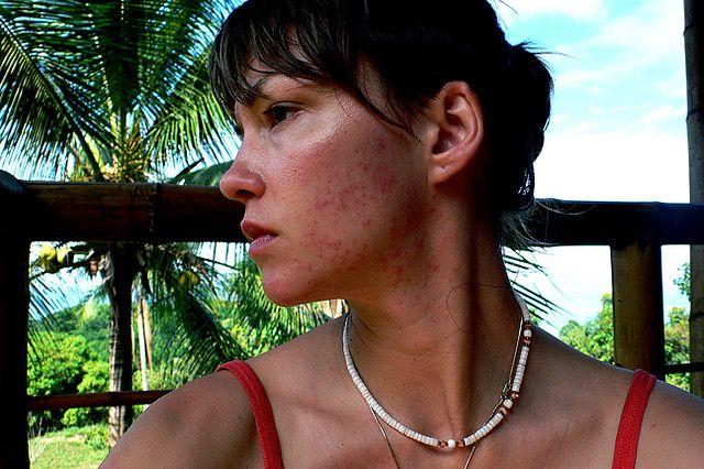 cliomakeup-acne-tardiva-10