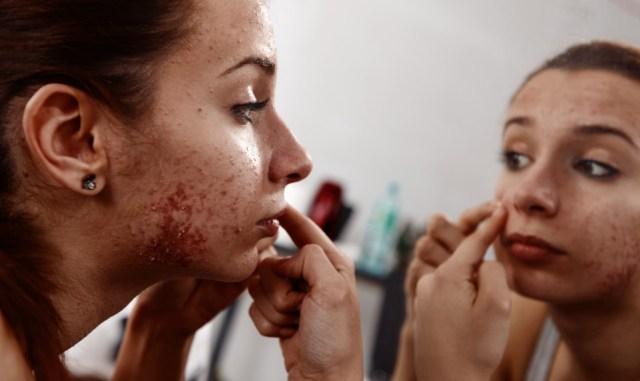 cliomakeup-acne-tardiva-16
