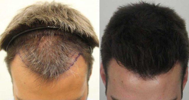 cliomakeup-perdita-capelli-rimedi-6
