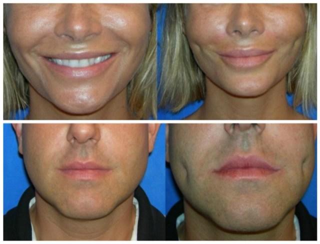 cliomakeup-chirurgia-estetica-trend-fossette-riduzione-capezzolo-labbra-9