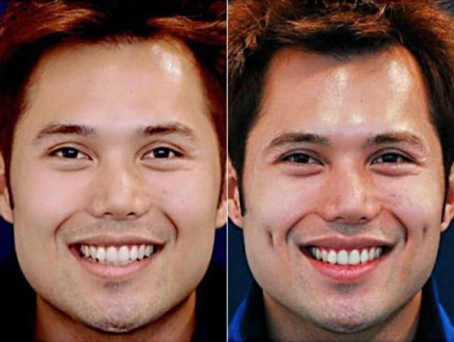 cliomakeup-chirurgia-estetica-trend-fossette-riduzione-capezzolo-labbra-10