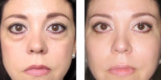 cliomakeup-occhiaie-rimedi-4-ernia