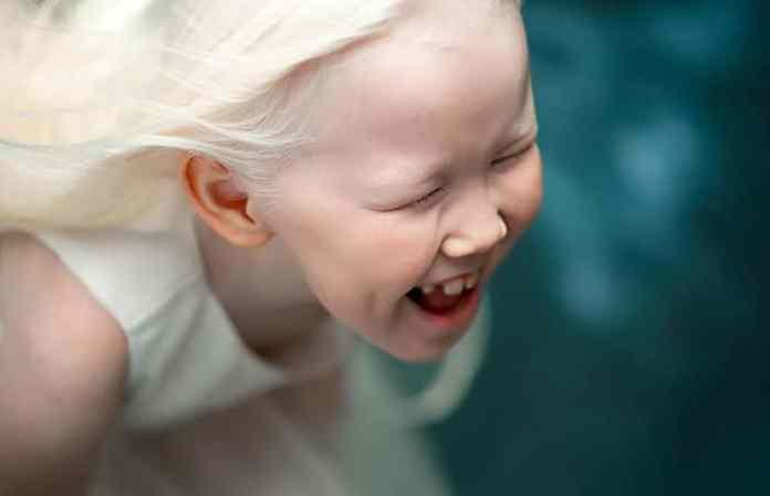 cliomakeup-albinismo-nella-moda-biancaneve-siberiana (1)