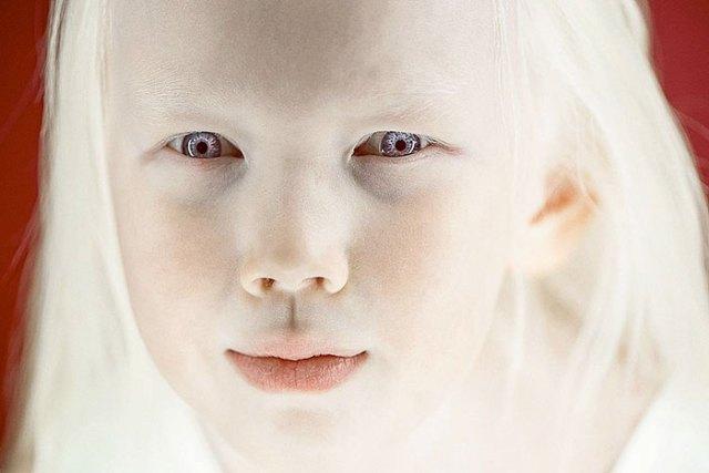 cliomakeup-albinismo-nella-moda-biancaneve-siberiana (2)