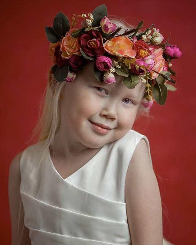 cliomakeup-albinismo-nella-moda-biancaneve-siberiana (5)