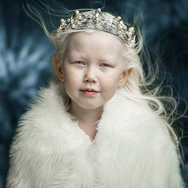 cliomakeup-albinismo-nella-moda-biancaneve-siberiana (24)