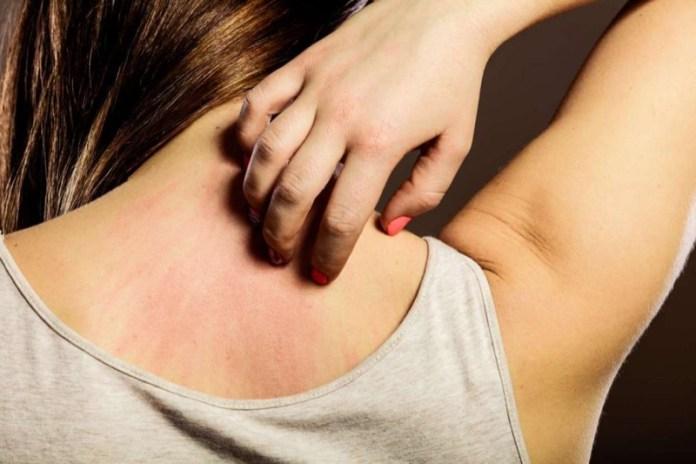 cliomakeup-cosmetici-prodotti-anallergici-8-allergia