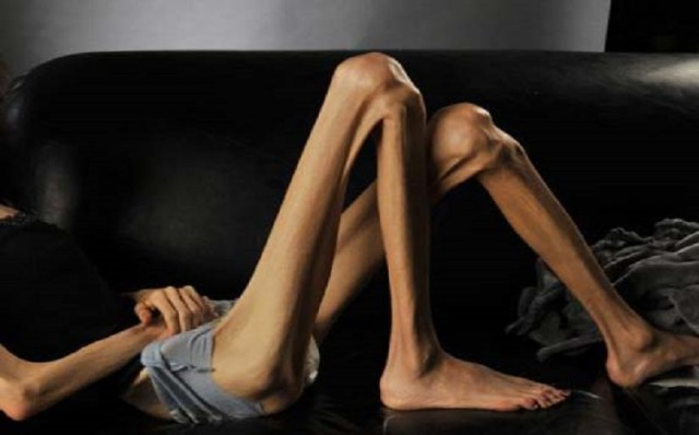 cliomakeup-disturbialimentari-anoressia-4