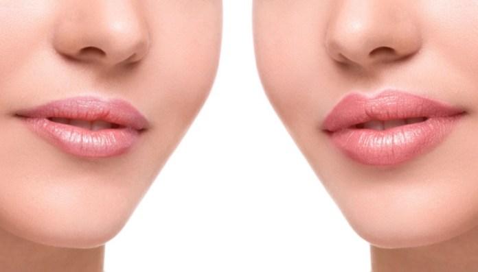 cliomakeup-filler-labbra-chirurgia-9-prima-dopo