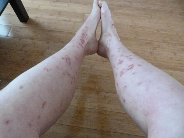 cliomakeup-dermatillomania-trattamenti-cure-cicatrici (5)