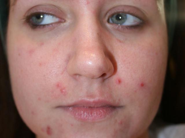 cliomakeup-dermatillomania-trattamenti-cure-cicatrici (12)