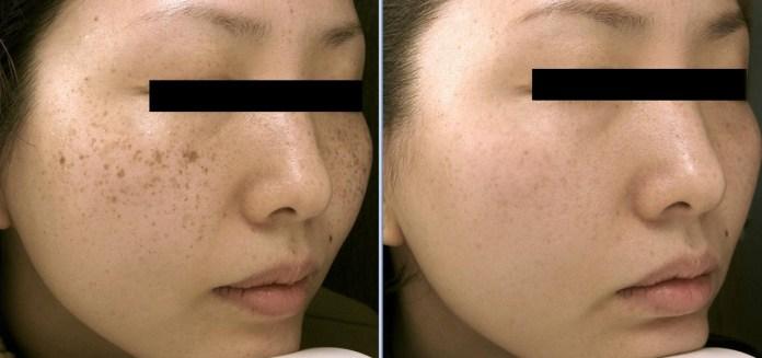 cliomakeup-angelina-jolie-skincare-rhonda-rand-dermatologa-14