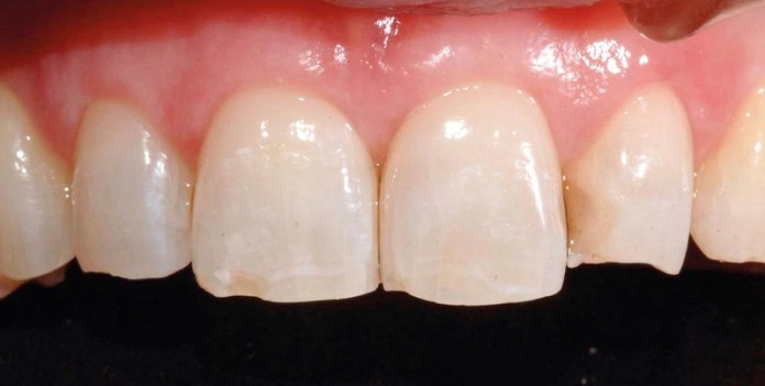 cliomakeup-dieta-limone-denti-20
