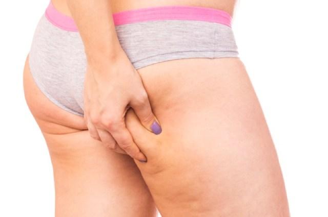 cliomakeup-cellulite-post-parto-6-gravidanza