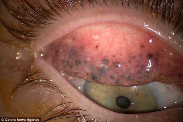 cliomakeup-mascara-theresa-lynch-6-grumi-occhio